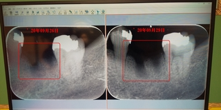 20_09_25 bingwu_dentist.JPG