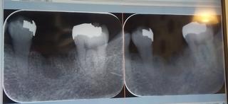 21_01_15_bingwu_dentist.JPG