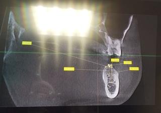 21_04_20_bingwu_dentist.JPG
